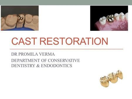 CAST RESTORATION DR PROMILA VERMA DEPARTMENT OF CONSERVATIVE DENTISTRY & ENDODONTICS.