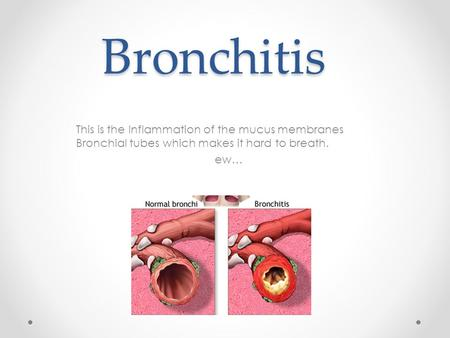 Bronchitis This is the Inflammation of the mucus membranes Bronchial tubes which makes it hard to breath. ew…