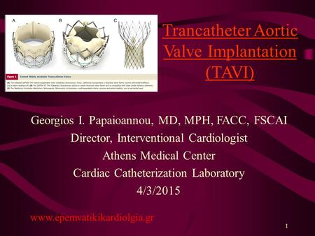 Trancatheter Aortic Valve Implantation (TAVI)