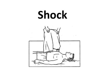Shock. Outlines Definitions Signs and symptoms of shock Classification General principles of management Specific types of shock.