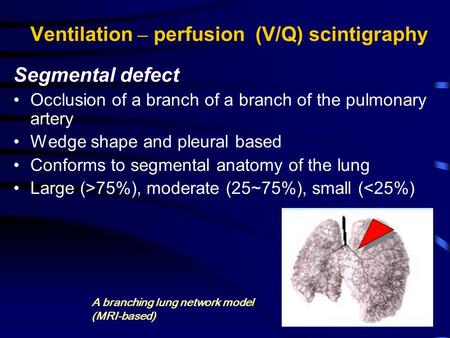 Ventilation – perfusion (V/Q) scintigraphy Segmental defect Occlusion of a branch of a branch of the pulmonary artery Wedge shape and pleural based Conforms.