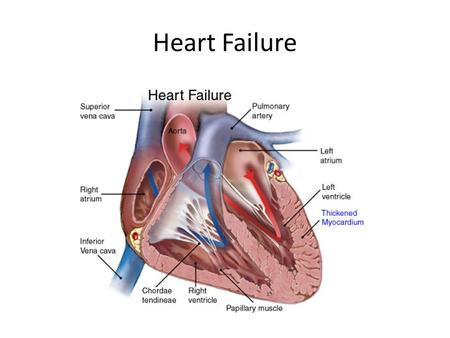 Heart Failure. Background to Congestive Heart Failure Normal cardiac output needed to adequately perfuse peripheral organs – Provide O 2, nutrients, etc.