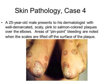 Skin Pathology, Case 4 A 25-year-old male presents to his dermatologist with well-demarcated, scaly, pink to salmon-colored plaques over the elbows. Areas.