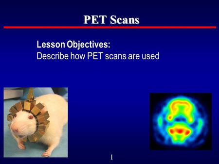 1 PET Scans Lesson Objectives: Describe how PET scans are used.