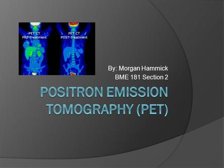 By: Morgan Hammick BME 181 Section 2. What is a PET scan?  A positron emission tomography scan is an imaging test that uses a radioactive substance called.
