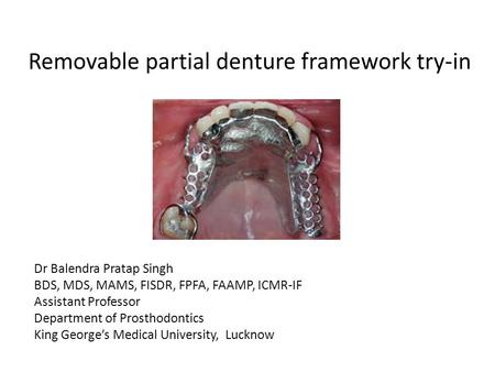 Removable partial denture framework try-in Dr Balendra Pratap Singh BDS, MDS, MAMS, FISDR, FPFA, FAAMP, ICMR-IF Assistant Professor Department of Prosthodontics.