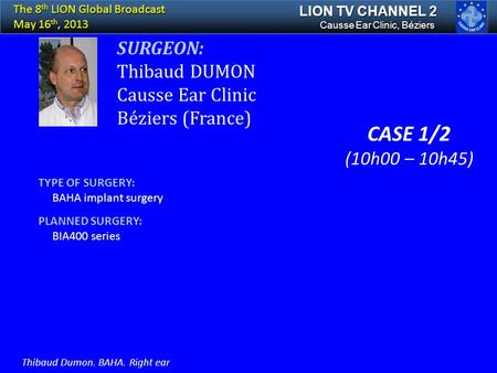 SURGEON: Thibaud DUMON Causse Ear Clinic Béziers (France) TYPE OF SURGERY: BAHA implant surgery PLANNED SURGERY: BIA400 series Causse Ear Clinic, Béziers.