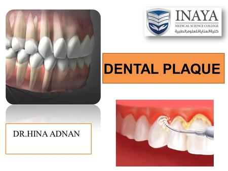 DENTAL PLAQUE DR.HINA ADNAN. DEFINITION: It is a soft deposits that form the biofilm adhering to the tooth surfaces or other hard surfaces in the oral.