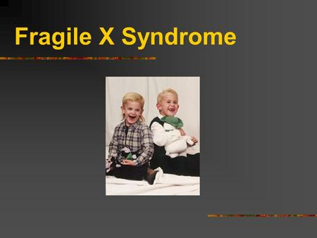 Fragile X Syndrome What Causes Fragile X? In 1991, scientists discovered the gene (called FMR1) that causes fragile X. FMR1 cannot manufacture the protein.