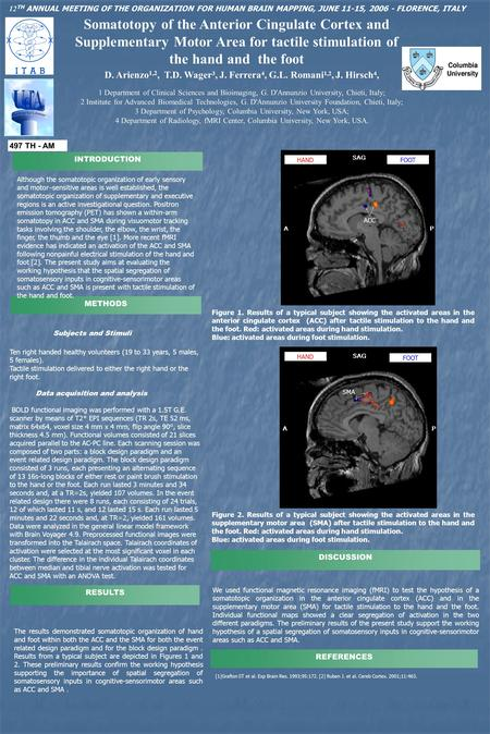Somatotopy of the Anterior Cingulate Cortex and Supplementary Motor Area for tactile stimulation of the hand and the foot D. Arienzo 1,2, T.D. Wager 3,