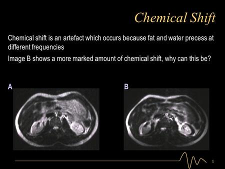1 Chemical Shift Image B shows a more marked amount of chemical shift, why can this be? Chemical shift is an artefact which occurs because fat and water.