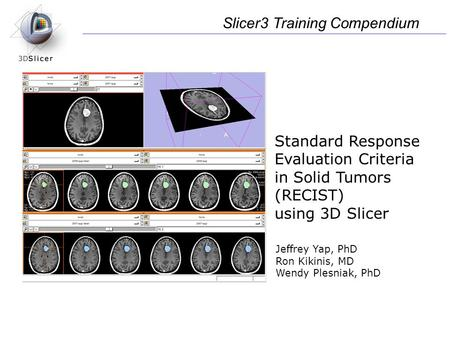 Standard Response Evaluation Criteria in Solid Tumors (RECIST) using 3D Slicer Slicer3 Training Compendium Jeffrey Yap, PhD Ron Kikinis, MD Wendy Plesniak,