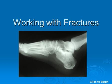 Working with Fractures Click to Begin. Working with Fractures Click to Continue.