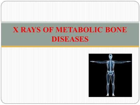 X RAYS OF METABOLIC BONE DISEASES. CONTENTS XRAY OF METABOLIC DISEASE OF BONE SUMMARY.