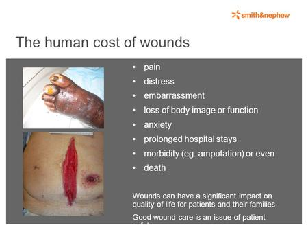 The human cost of wounds pain distress embarrassment loss of body image or function anxiety prolonged hospital stays morbidity (eg. amputation) or even.