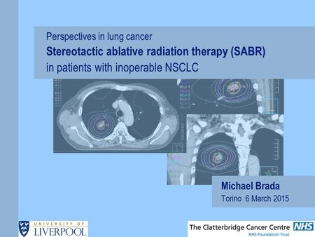 Michael Brada Torino 6 March 2015 Perspectives in lung cancer Stereotactic ablative radiation therapy (SABR) in patients with inoperable NSCLC.