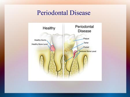 Periodontal Disease. Patient Profile Patient is a 68 year old male Health History  Presents with High Blood pressure  Medications: allertec and ¼ grain.