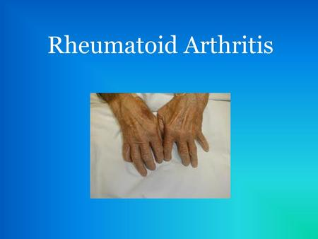 Rheumatoid Arthritis. What is it? Rheumatoid arthritis (RA) is a chronic, systemic, inflammatory disease Cause is often unknown Usually affects synovial.