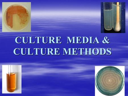 CULTURE MEDIA & CULTURE METHODS.  Bacteria grown on artifical cultures for identification & antibiotic testing.  After culture colonies are obtained.
