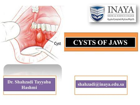 CYSTS OF JAWS Dr. Shahzadi Tayyaba Hashmi