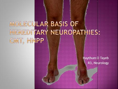 Haythum O Tayeb R3, Neurology.  Brief review of the genetics and molecular biology of CMT & HNPP with clinical correlation.