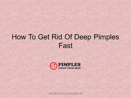 How To Get Rid Of Deep Pimples Fast For More Visit Pimples.io.