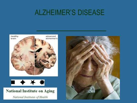 National Institute on Aging National Institutes of Health ALZHEIMER'S DISEASE.
