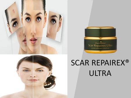 SCAR REPAIREX® ULTRA. ACTIVE INGREDIENTS ANTI INFLAMMATORY AGENTS ANTI OXIDANTS SCAR MATURERS Salicylic Acid 2% Bromelain 4% Rutin extract 4% Allantoin.