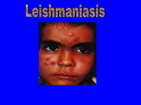 Leishmaniasis is transmitted by the bite of a tiny 2-3 millimeter- long insect vector-the Phlebotomine Sand fly.