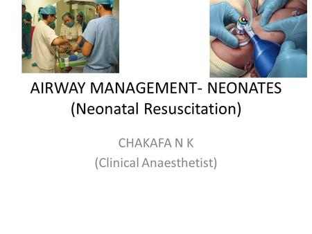 AIRWAY MANAGEMENT- NEONATES (Neonatal Resuscitation) CHAKAFA N K (Clinical Anaesthetist)