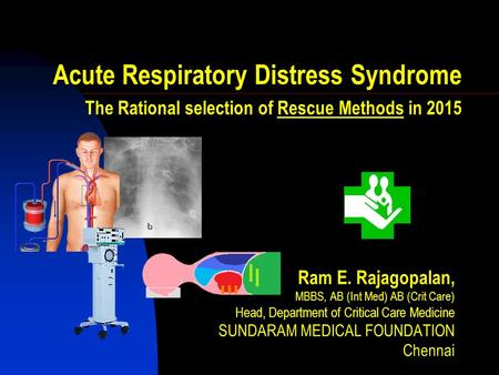 Acute Respiratory Distress Syndrome The Rational selection of Rescue Methods in 2015 Ram E. Rajagopalan, MBBS, AB (Int Med) AB (Crit Care) Head, Department.