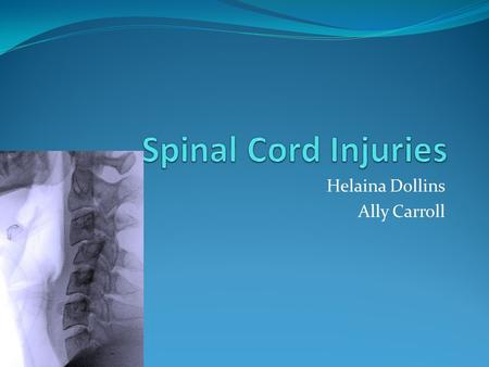 Helaina Dollins Ally Carroll. Description Spinal cord injuries usually begin with a blow that fractures or dislocates your vertebrae, the bone disks that.