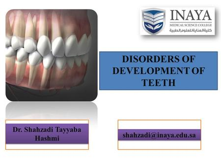 DISORDERS OF DEVELOPMENT OF TEETH Dr. Shahzadi Tayyaba Hashmi