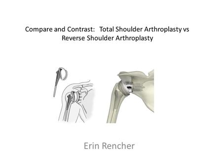 Compare and Contrast: Total Shoulder Arthroplasty vs Reverse Shoulder Arthroplasty Erin Rencher.