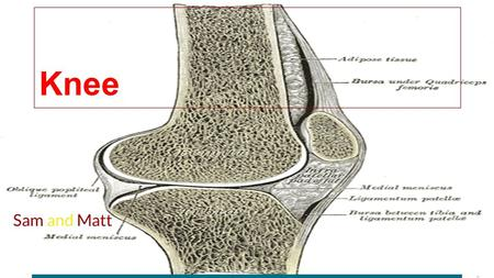 Knee Sam and Matt. Disease: Osteoarthritis Knee with Osteoarthritis.