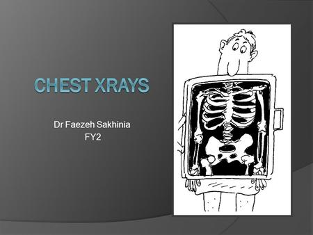 Dr Faezeh Sakhinia FY2. Aims  Basics of CXR interpretation  OSCE approach  Images with explanation  Quiz!!