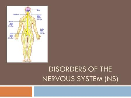 DISORDERS OF THE NERVOUS SYSTEM (NS). Multiple Sclerosis  Affects nerve cells of brain and spinal cord  It is believed to be an autoimmune disorder,