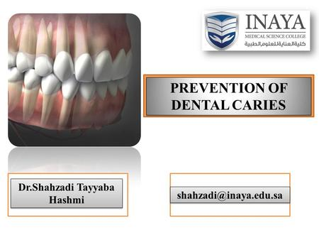 PREVENTION OF DENTAL CARIES Dr.Shahzadi Tayyaba Hashmi