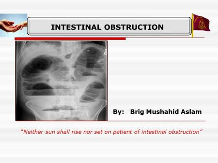 "INTESTINAL OBSTRUCTION By: Brig Mushahid Aslam ""Neither sun shall rise nor set on patient of intestinal obstruction"""