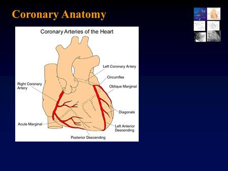 Coronary Anatomy.