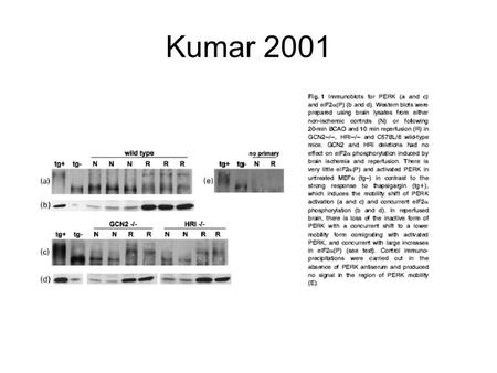 Kumar 2001. Total protein. Equal amounts of protein from non-ischemic brain homogenates were electrophoresed and proteins were detected by staining the.