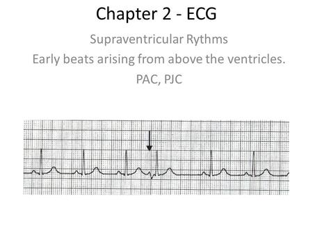 Chapter 2 - ECG Supraventricular Rythms Early beats arising from above the ventricles. PAC, PJC.