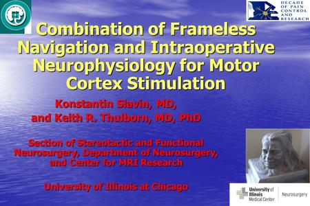 Combination of Frameless Navigation and Intraoperative Neurophysiology for Motor Cortex Stimulation Konstantin Slavin, MD, and Keith R. Thulborn, MD, PhD.