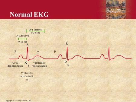 Copyright © 2006 by Elsevier, Inc. P-R interval 0.16 sec P T R Q S Q-T interval 0.35 sec Atrial depolarization Ventricular depolarizatio n Ventricular.