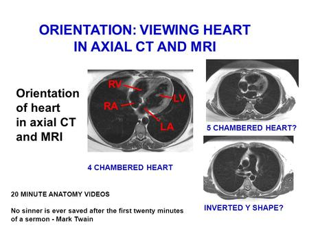 ORIENTATION: VIEWING HEART IN AXIAL CT AND MRI Orientation of heart in axial CT and MRI 20 MINUTE ANATOMY VIDEOS No sinner is ever saved after the first.