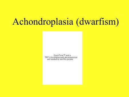 Achondroplasia (dwarfism). Medical Achondroplasia is a dominant, autosomal mutation. One would inherit this condition if the parents carried the gene.
