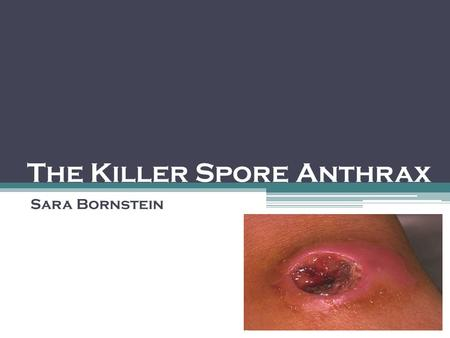 The Killer Spore Anthrax Sara Bornstein. Bacillus Anthracis Anthrax is a bacteria, with a few specific characteristics: Anthrax has a thick outer capsule,