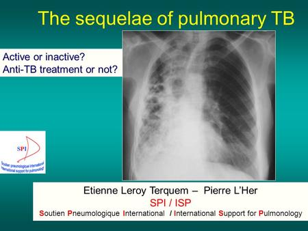 Active or inactive? Anti-TB treatment or not? Etienne Leroy Terquem – Pierre L'Her SPI / ISP Soutien Pneumologique International / International Support.