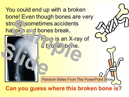 You could end up with a broken bone! Even though bones are very strong, sometimes accidents happen and bones break. Can you guess where this broken bone.