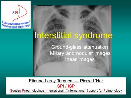 Interstitial syndrome Etienne Leroy Terquem – Pierre L'Her SPI / ISP Soutien Pneumologique International / International Support for Pulmonology Ground-glass.